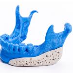 Manufactura aditiva, el plus en la integración de prótesis médicas